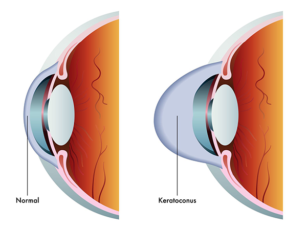 Keratoconus in Fort Wayne
